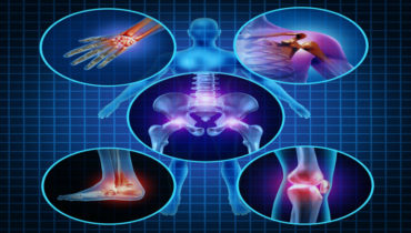 Pain relief for sore joints