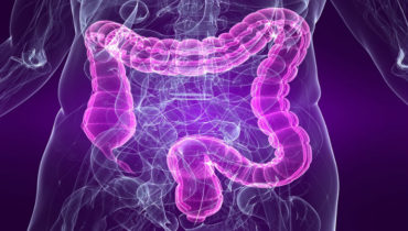 What is irritable bowel syndrome